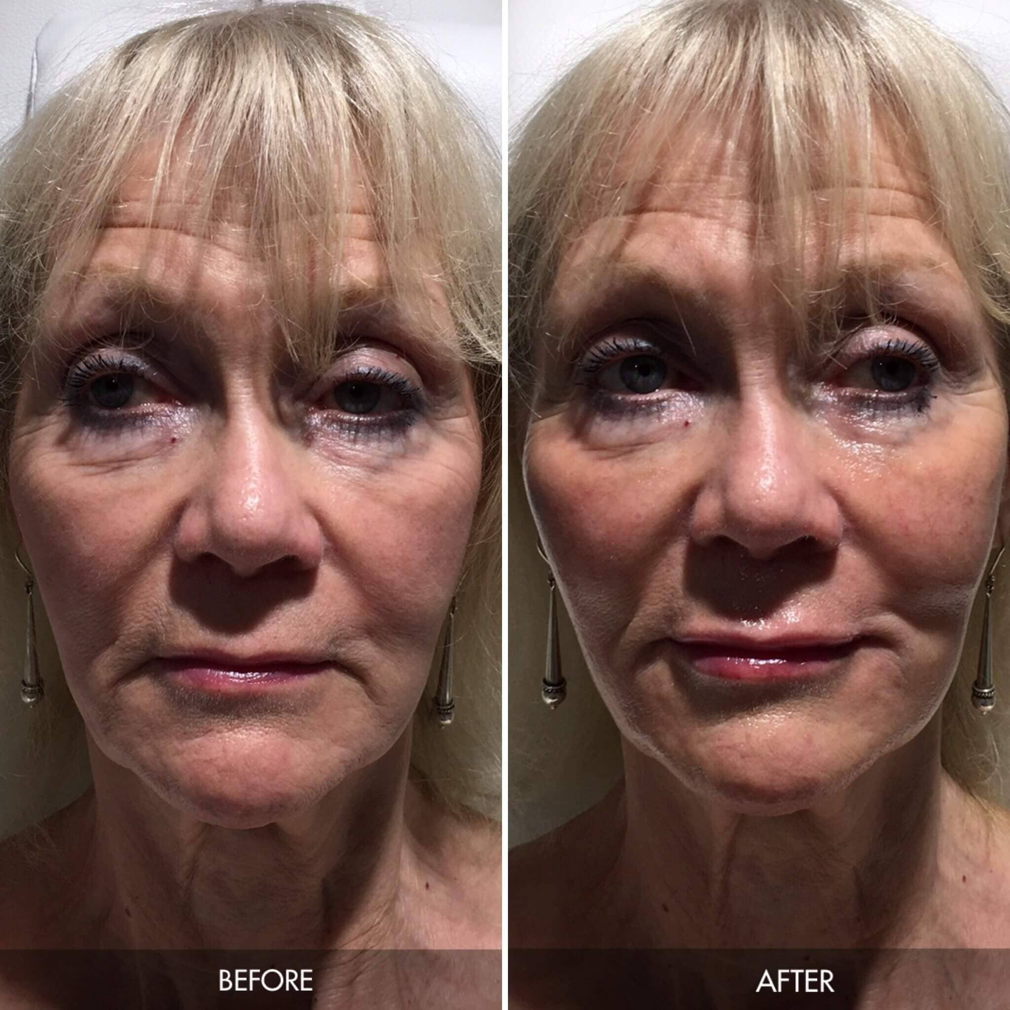 Our treatment results – Patient's before and after photos